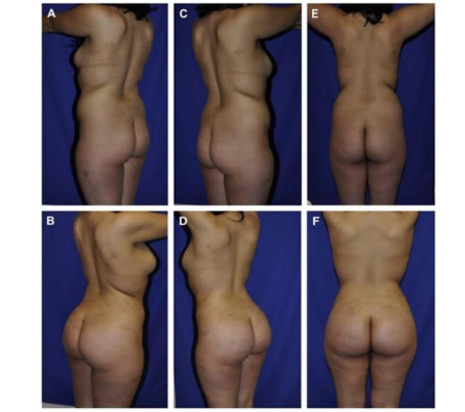 Hình. 5. (A) (Left) Hình ảnh trước khi hút mỡ và chuyển mỡ. (B) (Phải) Sau khi chuyển mỡ vào hai bên mông và hút mỡ ở cánh tay, lưng, bụng và đùi trong. (C,D) Chú ý sự khác biệt giữa hình bên trái và bên phải, đặc biệt là tình trạng bất đối hai bên xương chậu. (E ) Khoảng cách và góc thay đổi giữa xương chậu và khung chậu giữa bên phải và bên trái. (F) Bên phải có khoảng cách chậu-sườn ngắn hơn.