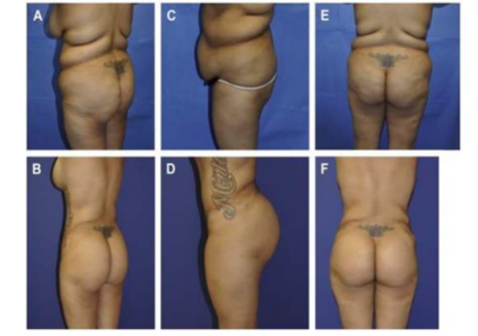 Hình. 6. (A) (Bên trái) Hình ảnh trước hút mỡ, tái tạo thành bụng và chuyển mỡ. (B) (phải) Sau hút mỡ và tái tạo thành bụng. (C,D) Trước và sau khi tạo hình thành bụng, hút mỡ ở tay, hai bên mạng sườn, toàn bộ lưng, bụng và mặt trong/ ngoài đùi. (E,F) (Giai đoạn hai) Sau 6 tháng, thực hiện hút mỡ ở lưng, bụng và cánh tay để chuyển mỡ tới vùng mông hai bên.