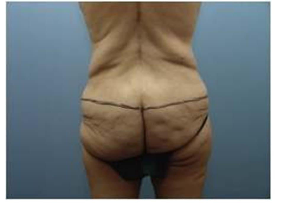 Hình. 1. Đường dưới xuất phát từ mấu chuyển lớn tới xương cụt, là đường chứa điểm hình chiếu (điểm mông nhô ra phía sau nhiều nhất).