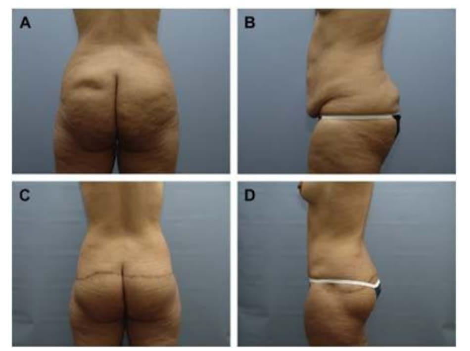 Hình. 11. (A, B) Bệnh nhân nữ 59 tuổi với vùng da mông chùng và xệ. (C,D) Hai năm sau phẫu thuật tạo hình thành bụng và tạo hình mông bằng phương pháp purse-string.Bệnh nhân này bị tách vết mổ, sau đó đã được điều trị liền sẹo