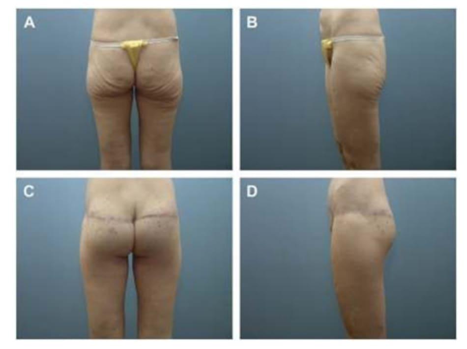 Hình. 12. (A, B) Bệnh nhân nữ 37 tuổi với vùng mông dẹt và xệ. (C,D) Tám tháng sau phẫu thuật tạo hình thành bụng và tạo hình mông bằng phương pháp purse- string .
