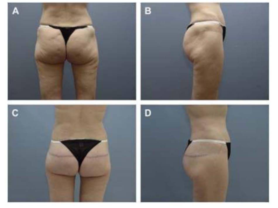 Hình. 13. (A, B) Một bệnh nhân 62 tuổi với vùng mông xệ và hình chiếu không thẩm mỹ. (C,D) Sau phẫu thuật 16 tháng tạo hình mông bằng phương pháp purse-string (đã tạo hình thành bụng trước đó).