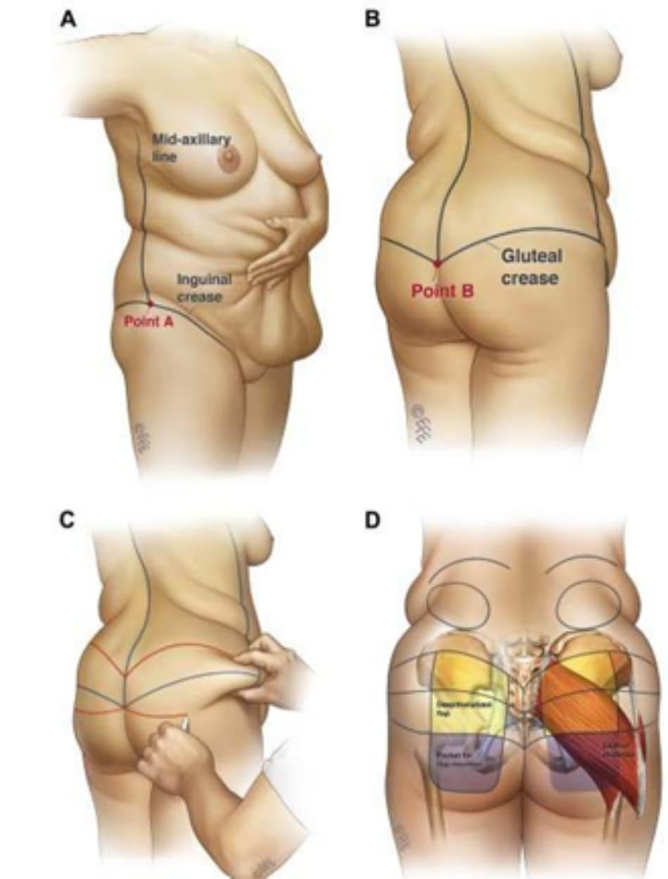 Hình. 1. Đánh dấu mốc giải phẫu quan trọng