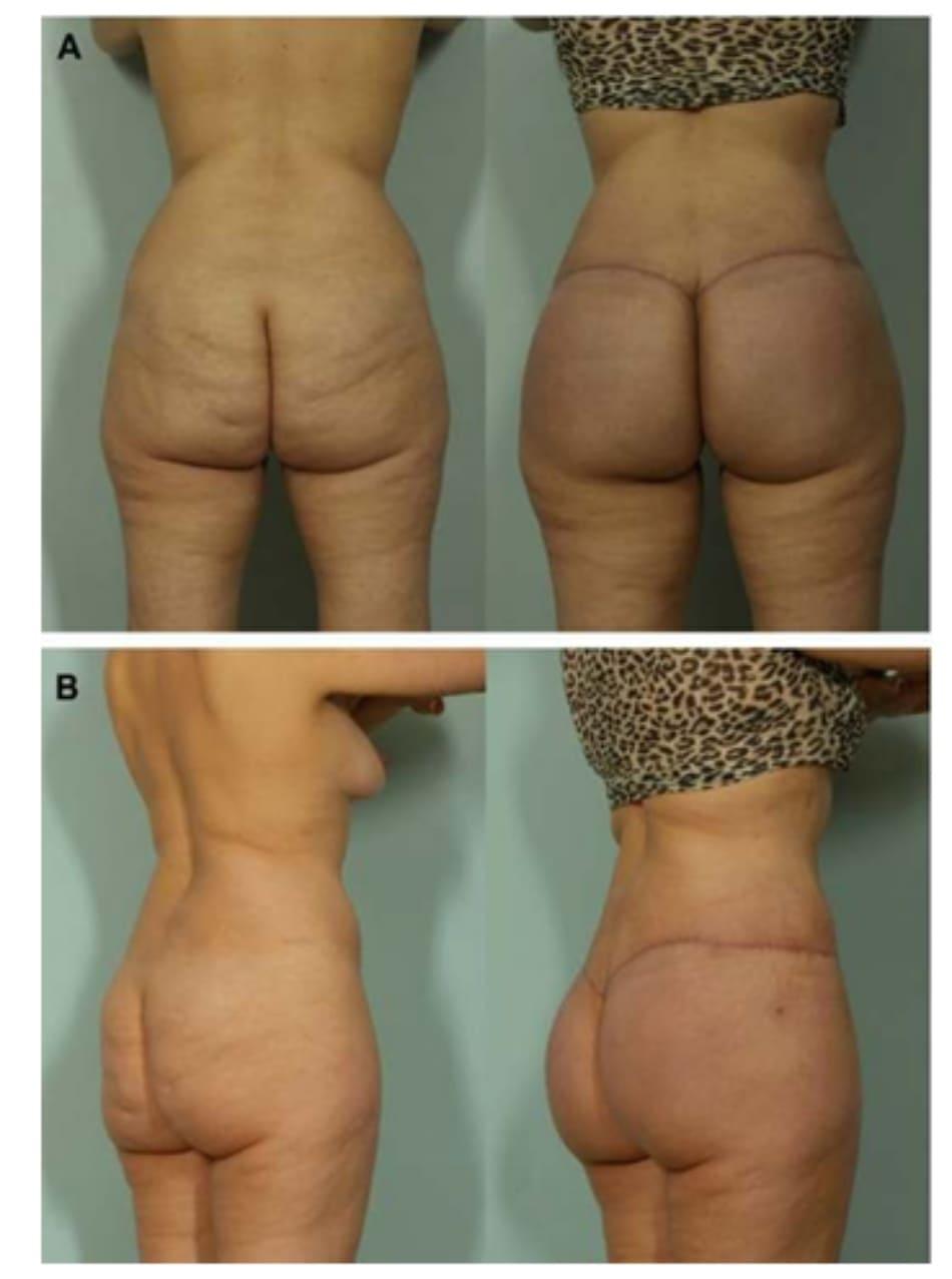 Hình. 5. Hình ảnh trước và sau phẫu thuật, chứng minh sự cải thiện về hình dáng mông và loại bỏ đi những bất thường.