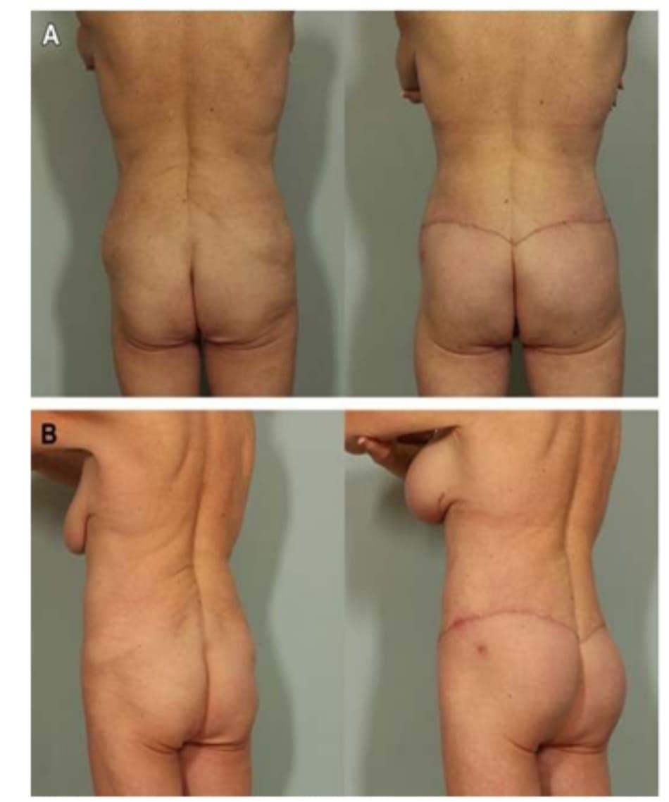 Hình. 6. Hình ảnh trước và sau phẫu thuật, khẳng định kết quả khả quan ở bệnh nhân có lượng mô mềm hạn chế.