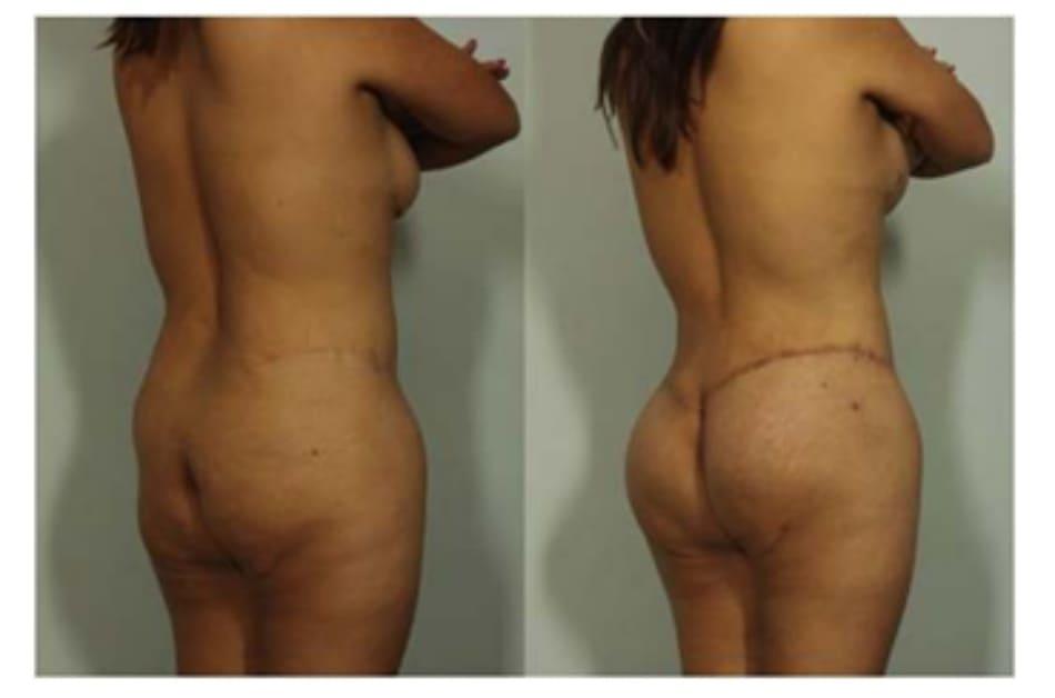 Hình. 7. Hình ảnh trước và sau phẫu thuật của một bệnh nhân đã từng thực hiện tạo hình thành bụng trước đó, chứng tỏ sự linh hoạt của ký thuật này trong việc tùy chỉnh vị trí sẹo (cao/thấp).