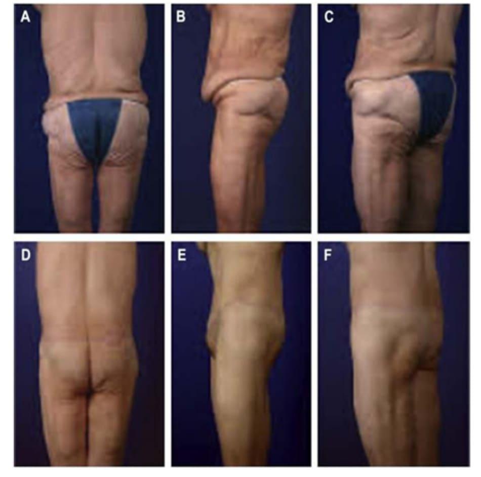 Hình. 1. CBL/EBL và vùng mông dẹt. (A-C) Hình ảnh phía sau, phía bên và chếch, trước phẫu thuật. (D-F) Hình ảnh phía sau, phía bên và chếch, sau phẫu thuật.