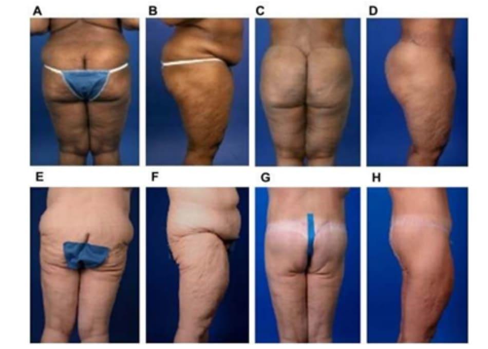 Hình. 10. Vị trí đường rạch đối với mông ngắn/dài. Trước phẫu thuật: (A) Mặt sau. (B) Mặt bên. Sau phẫu thuật (C) Mặt sau với đường rạch cao. (D) Mặt bên với đường rạch cao. Trước phẫu thuật (E) Mặt sau. (F) Mặt bên. Sau phẫu thuật (G) Mặt sau với đường rạch thấp. (H) Mặt bên với đường rạch thấp.