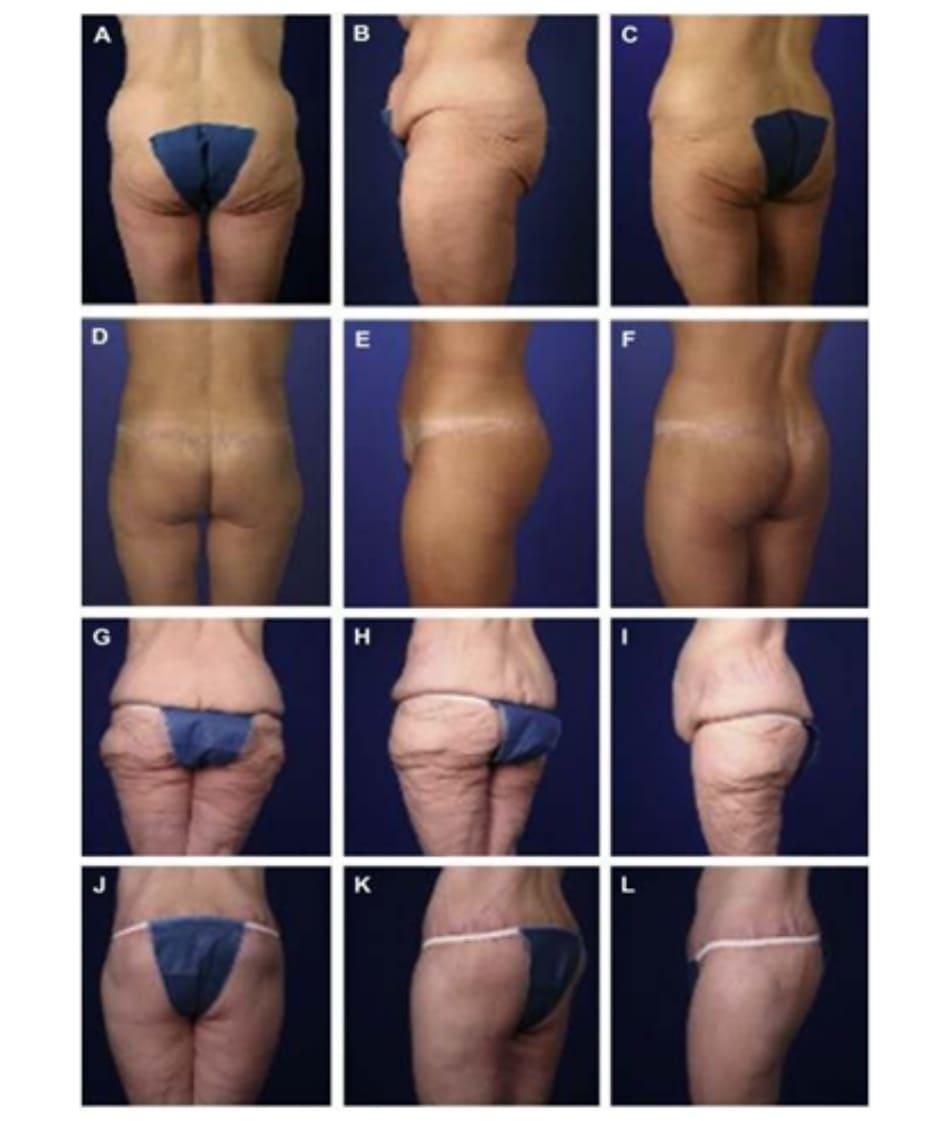 Hình. 12. Kết quả tạo hình đảo vạt trong AGA với CBL. Trước phẫu thuật (A) Mặt sau. (B) Mặt bên. (C) Chếch trái sau. Sau phẫu thuật (D) Mặt sau. (E) Mặt bên. (F) Chếch trái sau. Trước phẫu thuật (G) Mặt sau. (H) Chếch trái sau. (/) Mặt bên. Sau phẫu thuật (J) Mặt sau. (K) Chếch trái sau. (L) Mặt bên