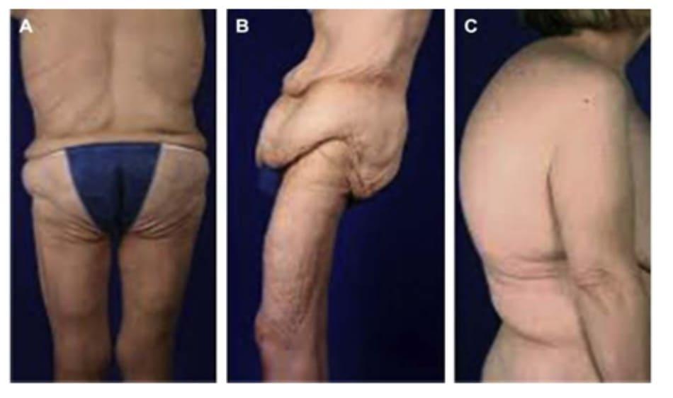 Hình. 2. Thay đổi khung xương khi giảm cân lượng lớn. (A) Vẹo cột sống & vòng ngực lớn bất thường. (B) Xoay và nghiêng khung chậu. (C) Gù và vòng ngực lớn bất thường..