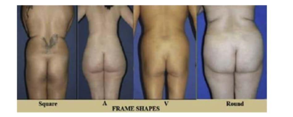 Hình. 8. Hình dáng khung mông.