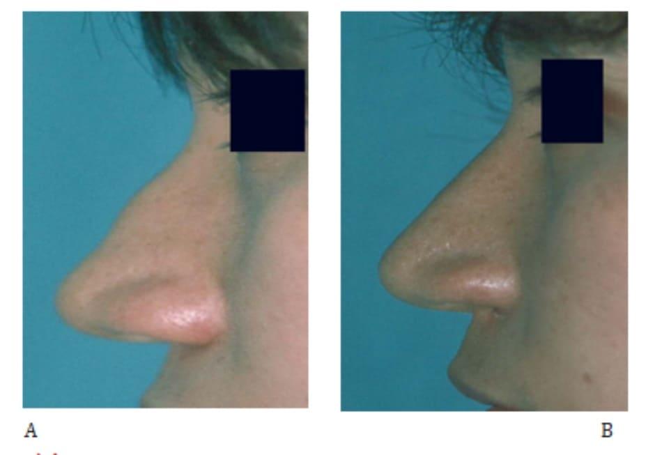 Hình 25-10 A, Hình ảnh tiền phẫu. B, Hình ảnh hậu phẫu.