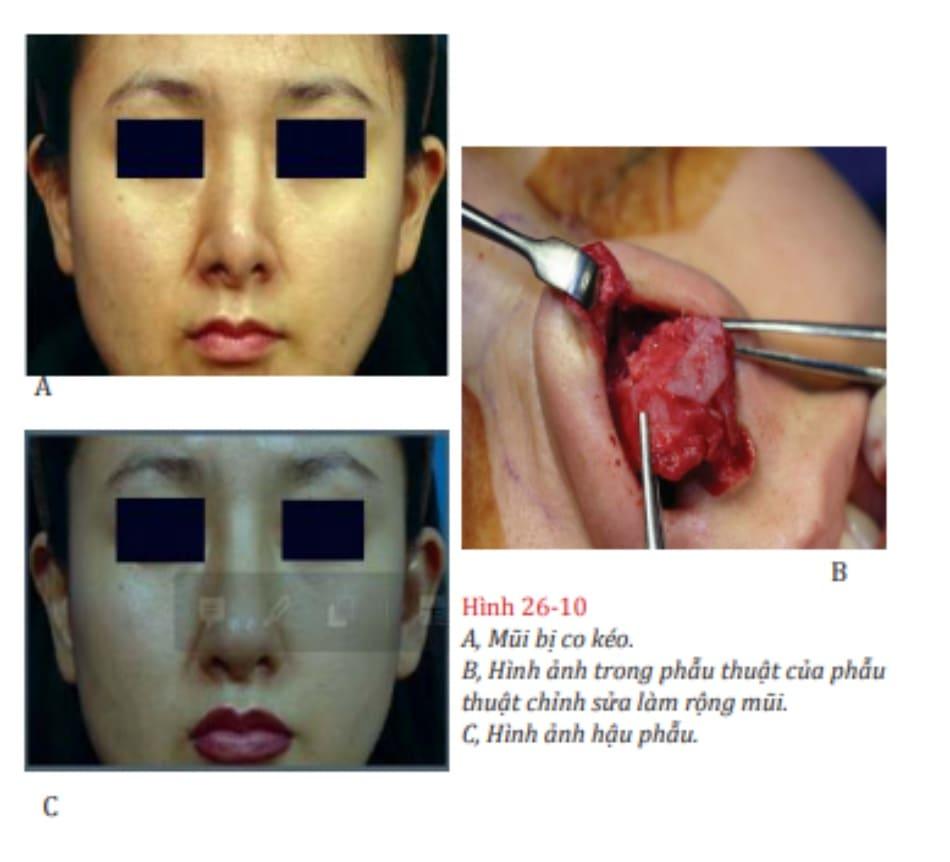 Hình 26-10 A, Mũi bị co kéo. B, Hình ảnh trong phẫu thuật của phẫu thuật chỉnh sửa làm rộng mũi. C, Hình ảnh hậu phẫu.