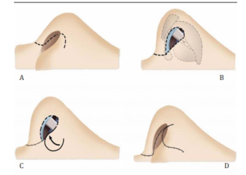Hình 26-12 Vạt vách ngăn tựa trên hay tựa dưới được dùng để đóng vùng tam giác mô mềm. Vách ngăn giúp làm lành thứ phát và không tác dụng phụ ở tuần 2-3.