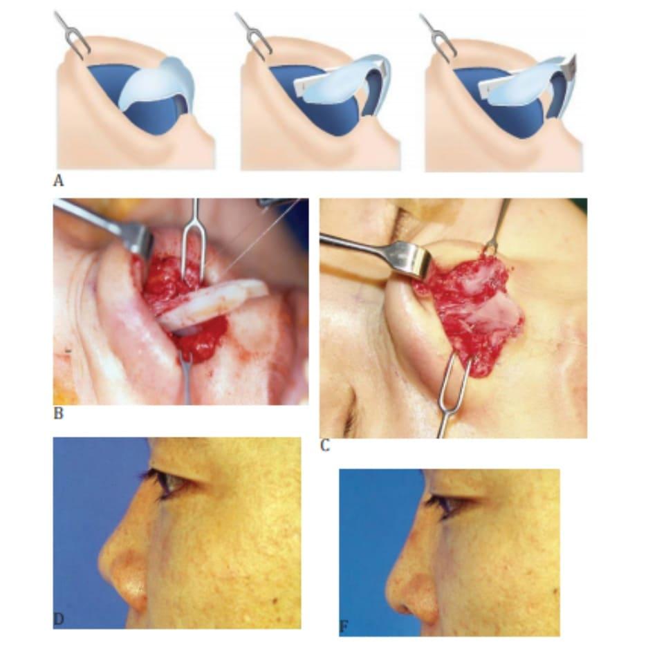 Hình 26-3 Nếu tạo cấu trúc hỗ trợ bằng vạt kéo dài, thì vạt che phủ (A)có thể được thêm vào để kéo dài mũi. Phần da kéo nên được đánh giá cẩn thận. B, Vạt phủ kéo dài từ sụn sườn. C, Vạt phủ hai bên từ sụn vách ngăn. D và E, Hậu phẫu nhìn từ bên minh họ gọc mũi môi được cắt giảm từ 120 độ xuống 90 độ.