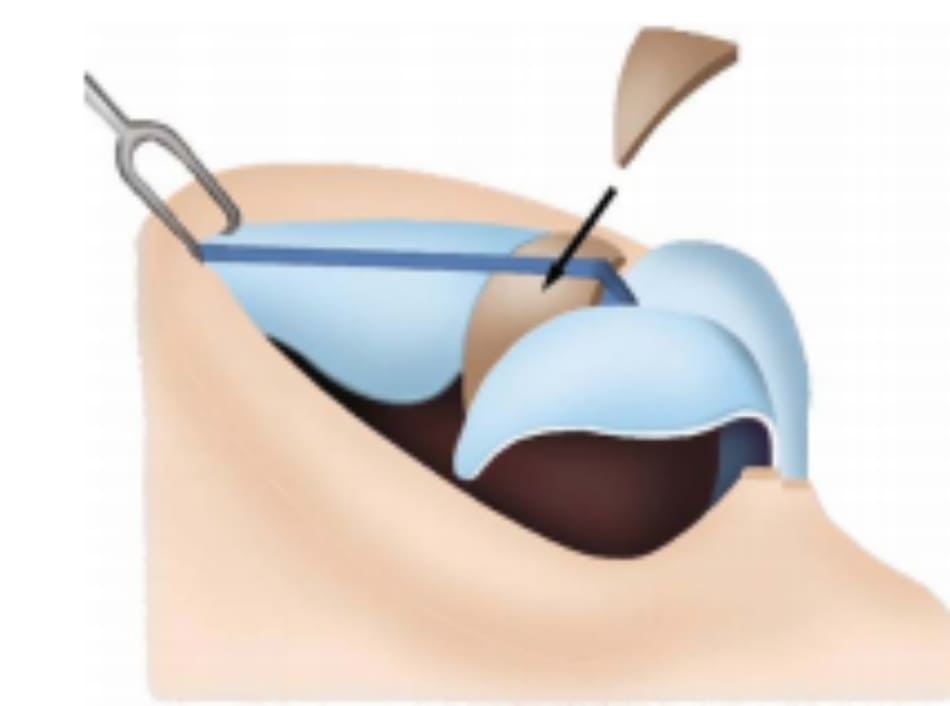 Hình 26-7 Sử dụng vạt sụn vành tai phối hợp, nằm giữa sụn trên và dưới là một kiểu thay thế.
