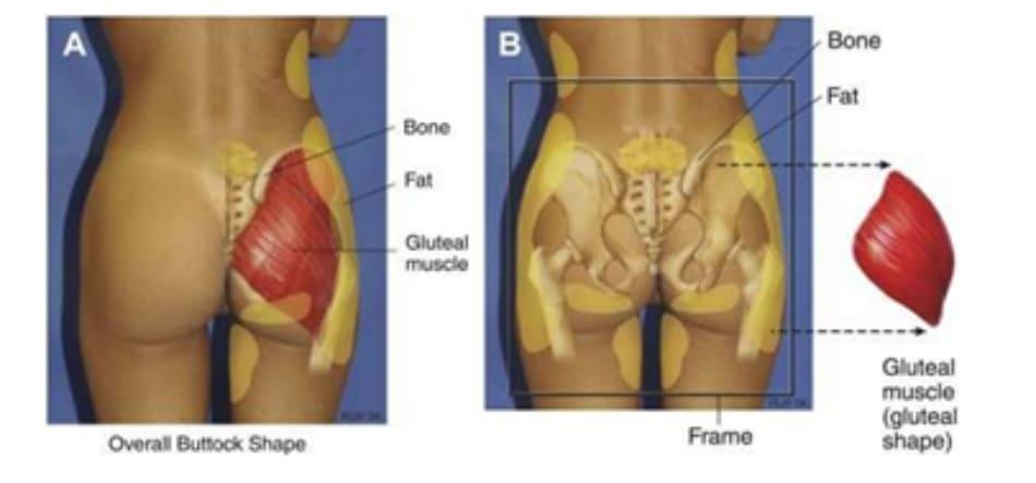 Hình 1. (A) Hình thể toàn bộ vùng mông phụ thuộc vào khung xương, cơ mông lớn, vị trí và lượng mỡ dưới da, độ căng của da. (B) Khung mông, với cơ mông lớn đã được tách ra.