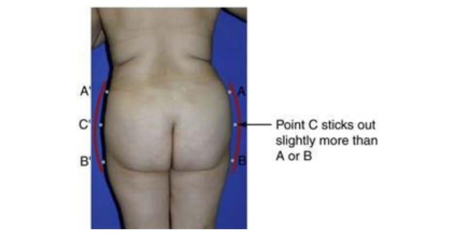 Hình. 10. Minh họa mông khung tròn.