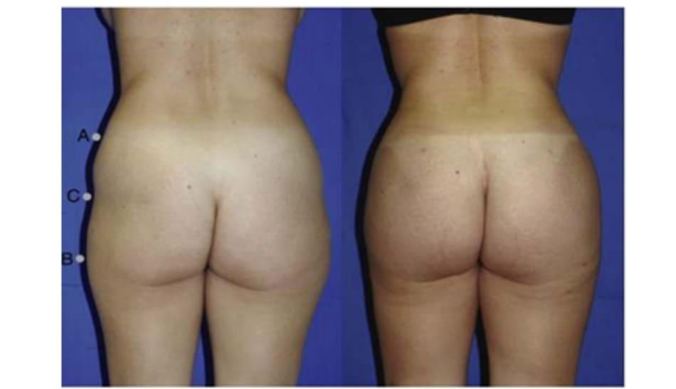 Hình. 12. Khung mông dạng chữ A, cao trước (bên trái) và sau (bên phải) nâng mông thẩm mỹ.