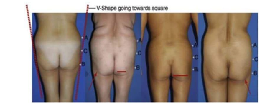 Hình. 13. Hình minh họa mông hình chữ V. Mũi tên màu đỏ cho biết đường ranh giới của mặt ngoài mông và mặt ngoài đùi: phương pháp trị liệu tốt nhất là cấy mô mỡ. Đường liền nét cho biết chiều rộng cơ mông lớn với bên trái là chiều rộng ngắn, bên phải là bình thường.