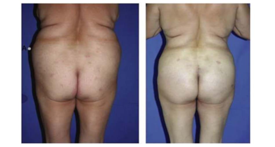 Hình. 15. Khung hình chữ V, cao với khối cơ mông lớn ngắn trước (trái) và sau (phải) phẫu thuật tạo hình.