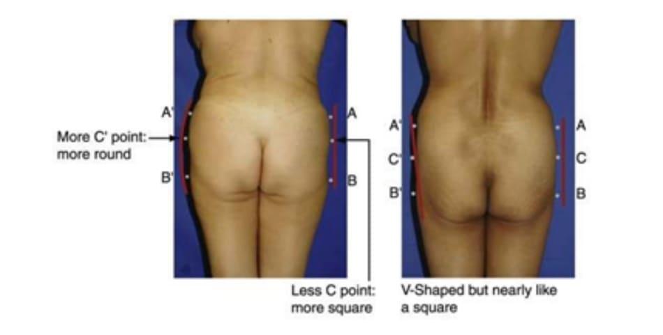 Hình. 16. Các dạng khung không đối xứng có thể gặp ở một số bệnh nhân. Ảnh bên trái là 1 bên thuộc khung tròn, 1 bên thuộc khung vuông. Còn ở ảnh bên phải, 1 bên thuộc khung chữ V, bên còn lại thuộc khung vuông.