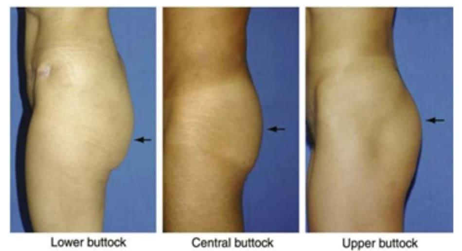 Hình. 20. Phần lớn thể tích vùng mông tập trung ở 1/3 dưới, giữa, trên.
