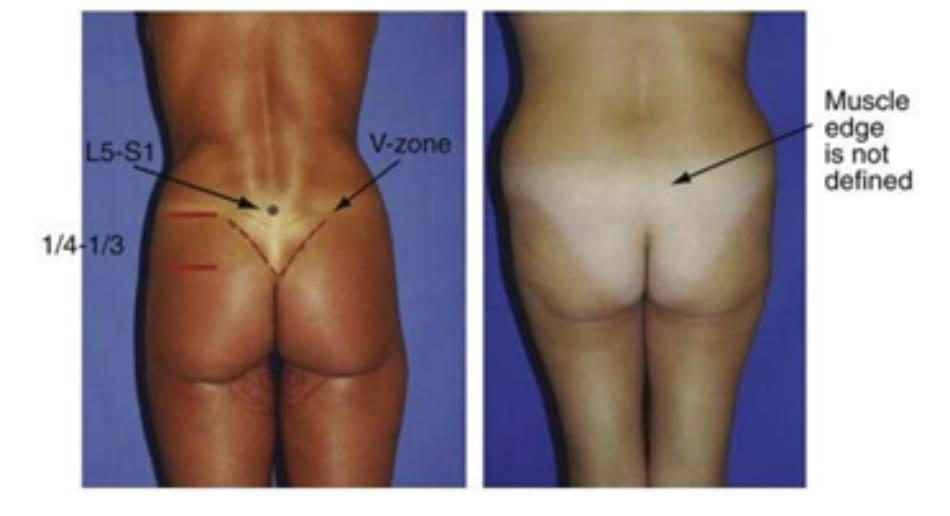 Hình. 21. Đánh giá mối tương quan giữa cơ mông và vùng trên trong mông và tam giác cùng. Ở ảnh bên trái, điểm chấm đen là khớp gian đốt L5-S1, đường nét liền phía dưới đành dấu điểm cuối cùng của đường liên mông, và đường chấm đánh dấu điểm cuối cùng của bờ trên cơ mông lớn. Bệnh nhân ở phía bên trái có thể thấy rõ vùng chữ V cũng như bờ cơ mông lớn. Bệnh nhân bên phải không thấy vùng chữ V vì thiếu thể tích vùng mông cũng như thừa mỡ vùng V, vì thế trông mông sẽ bị dẹt.