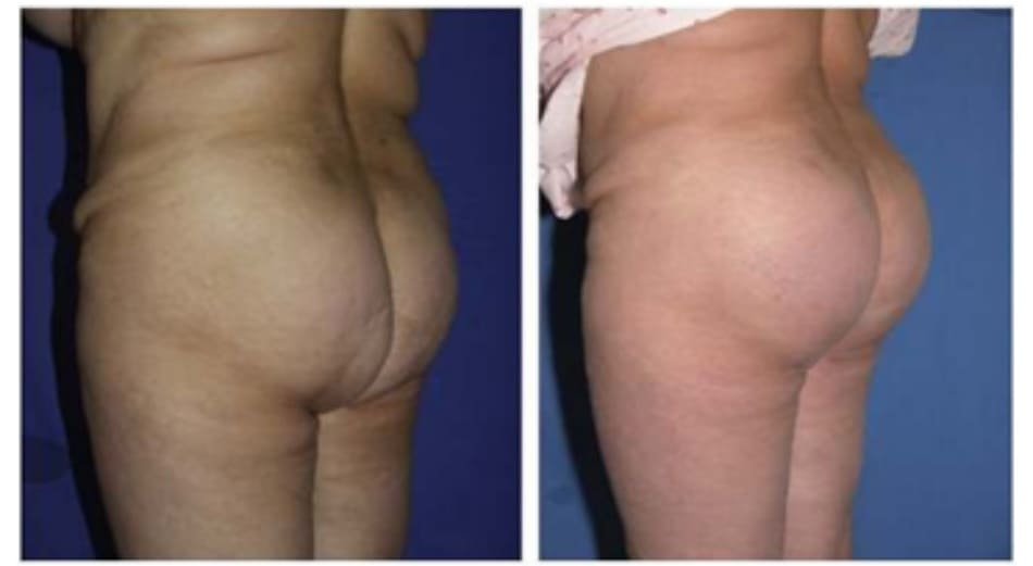 Hình. 23. Hình ảnh trước (trái) và sau (phải) của một bệnh nhân đã thực hiện nâng mông bằng thủ thuật cấy vòng lớn, nếp lằn mông cũ bỏ, kèm theo hút mỡ vùng mông trên và vùng dưới nếp lằn mông.