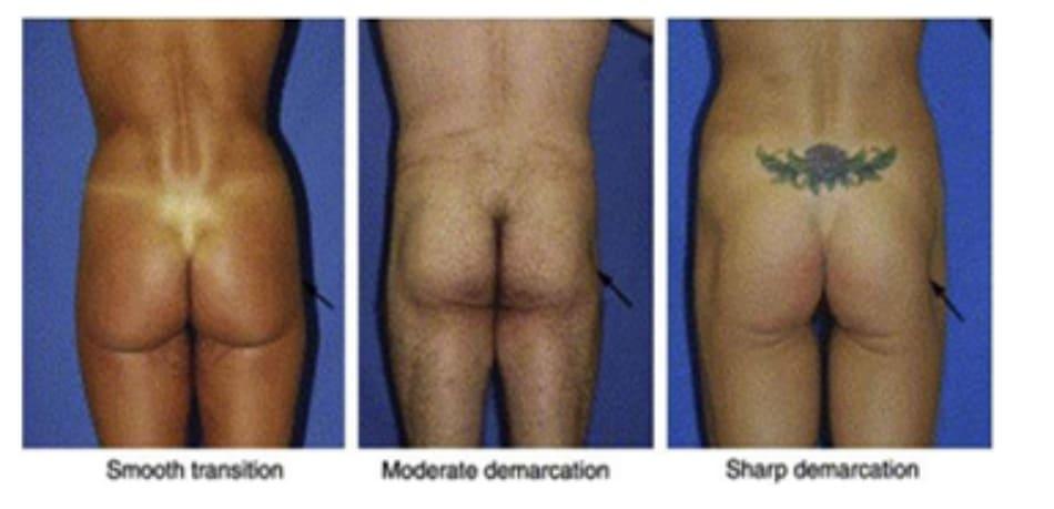 Hình. 25. Đánh giá vùng chuyển tiếp giữa mặt giữa ngoài mông và hông (mũi tên đen). Vùng chuyển tiếp liên tục được coi là lý tưởng. Các vùng chuyển tiếp khác có thể là trung gian hoặc không liên tục (hình giữa và bên phải). Ở cả 3 bệnh nhân này, điểm C đều không có dấu hiệu lõm. Smooth transition: Chuyển tiếp liên tục Moderate demarcation: Trung gian Sharp demarcation: Không liên tục