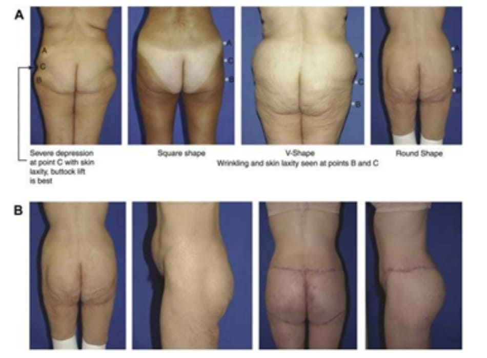 Hình. 26. (A) Đánh giá độ chùng của da mông ở các vị trí với các hình dạng khác nhau. Bệnh nhân bên trái bị lõm nghiêm trọng ở điểm C và vùng ngoài da tương đối sần sùi. Cô ấy nên được điều trị bằng các pp nâng mông. 3 bệnh nhân còn lại xuất hiện vùng da thừa và nếp nhăn ở điểm B và C. (B) Bệnh nhân ở ảnh ngoài cùng bên phải của hình 26A sau khi trải qua phẫu thuật nâng mông trên bằng vạt da. Ở thì hai của cuộc phẫu thuật, cô ấy đã được nâng nếp lằn mông và làm đầy bằng implant.