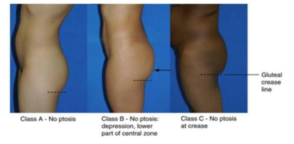 Hình. 27. Phân loại các bệnh nhân không có sa mông theo 3 lớp A, B, và C. Đường nét đứt biểu thị cho nếp lằn mông nhìn từ phía bên (đôi khi được gọi là crease). Class A- No ptosis: Lớp A – Không sa Class B - No ptosis: depression , lower part of central zone: Lớp B – Không sa: Lõm ở phía dưới vùng trung tâm. Class C - No ptosis at crease: Lớp C – Không sa xuống dưới nếp lằn mông. Gluteal crease line : Nếp lằn mông
