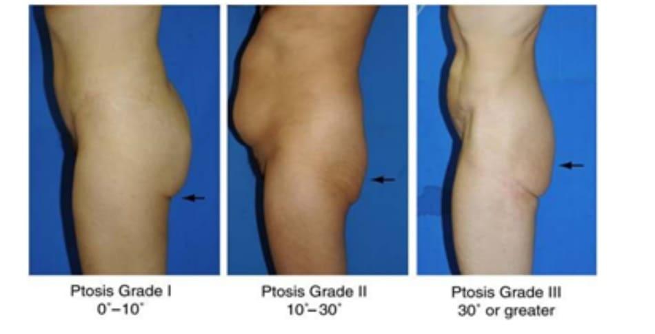 Hình. 28. Giai đoạn I, II, III của bệnh nhân có tình trạng sa mông. Ở giai đoạn I, góc tạo bởi nếp da nhỏ hơn 10 độ. Ở giai đoạn II, focs này rơi vào khoảng từ 10- 30 độ. Còn ở giai đoạn III, góc tạo bởi nếp da lớn hơn 30 độ. Ptosis Grade I 00-100: Sa mông GĐ I 00-100 Ptosis Grade II 100-300 Ptosis Grade III 300 or greater: Sa mông GĐ III 30° hoặc hơn