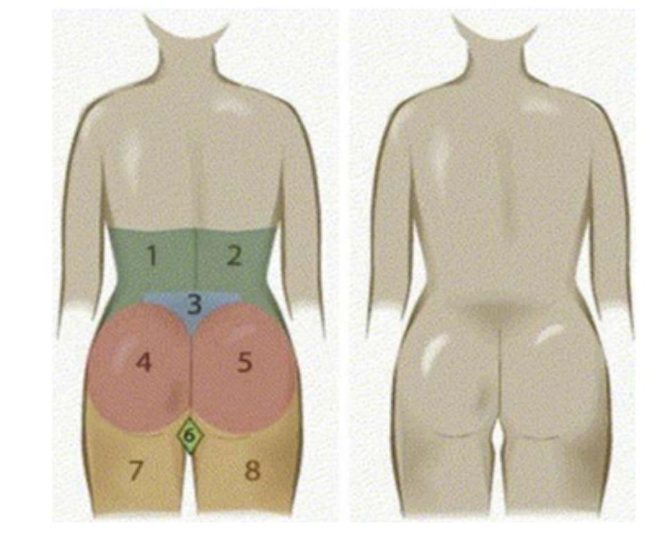 Hình. 3. 8 đơn vị thẩm mỹ vùng mông bao gồm 2 mạn sườn đối xứng 2 bên (1,2), 1 tam giác cùng (3), mông hai bên (4,5), 2 đùi sau đối xứng nhau (7 và 8), và 1 bộ phận giao thoa của 2 nếp lằn mông (hình thoi – 6) (Nguồn: Centeno RF. Gluteal aesthetic unit classification: a tool to improve outcomes in body contouring. Aes- thetic Surg J 2006;26(2):200-8)