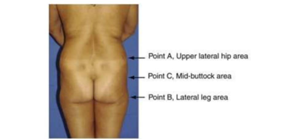 Hình. 4. Điểm A, B, C trong đánh giá khung (chậu)