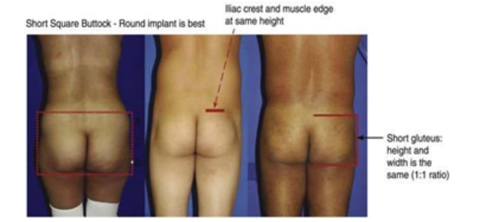 Hình. 7. Hình minh họa khung vuông, ngắn. Cơ mông lớn có tỉ lệ cao/rộng 1:1.