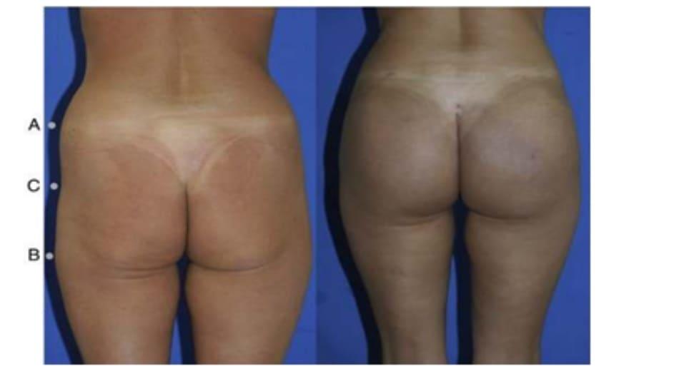 Hình. 9. Minh họa khung vuông, cao trước (trái) và sau (phải) phẫu thuật chỉnh hình mông.