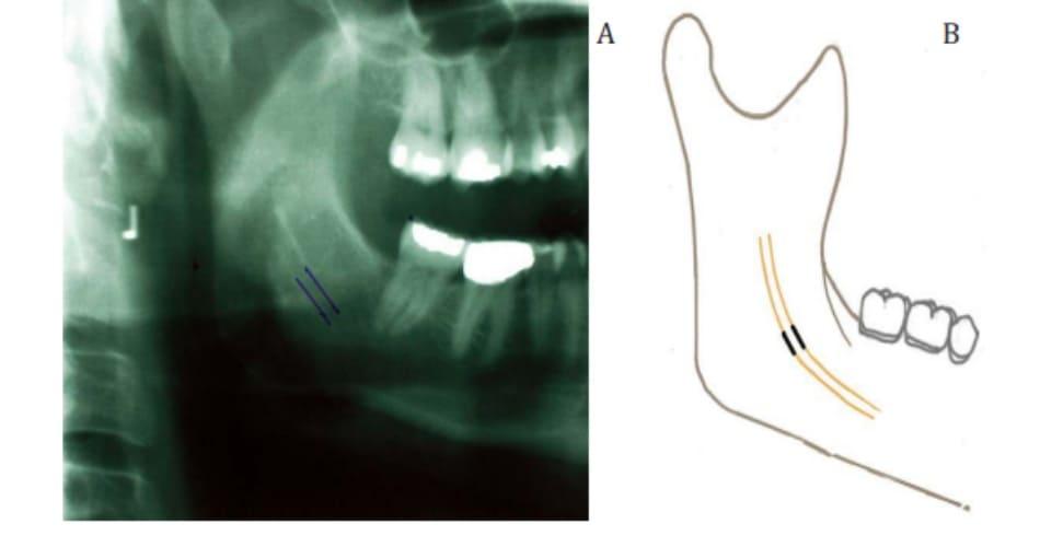Hình 38-1 Đường hầm cho bó mạch thần kinh huyệt răng dưới được nhìn thấy rõ trên Xquang. Đường hầm được đánh dấu bằng 2 đường thẳng song song