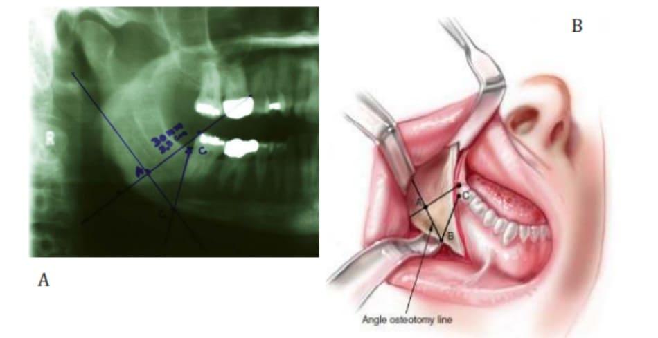 Hình 38-10 Một đường thẳng nối từ điểm B đến A và kéo dài tiếp đến phần sau xương hàm dưới chính là đường cắt phần góc xương hàm dưới.