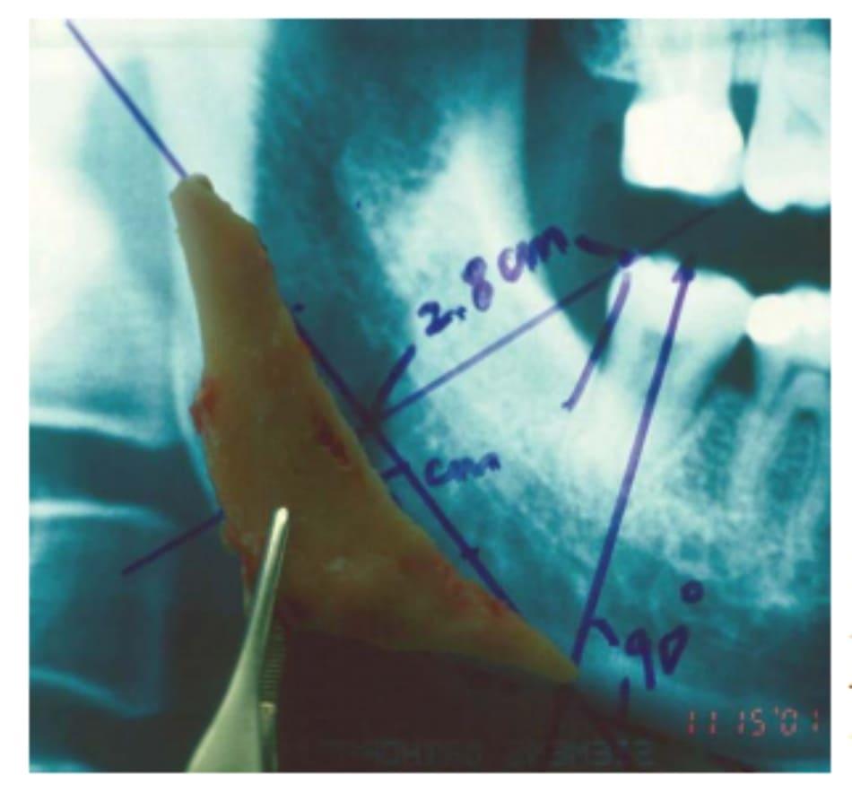 Hình 38-11 Phần tách bỏ của phần góc xương hàm dưới đối chiếu trên hình ảnh Xquang.