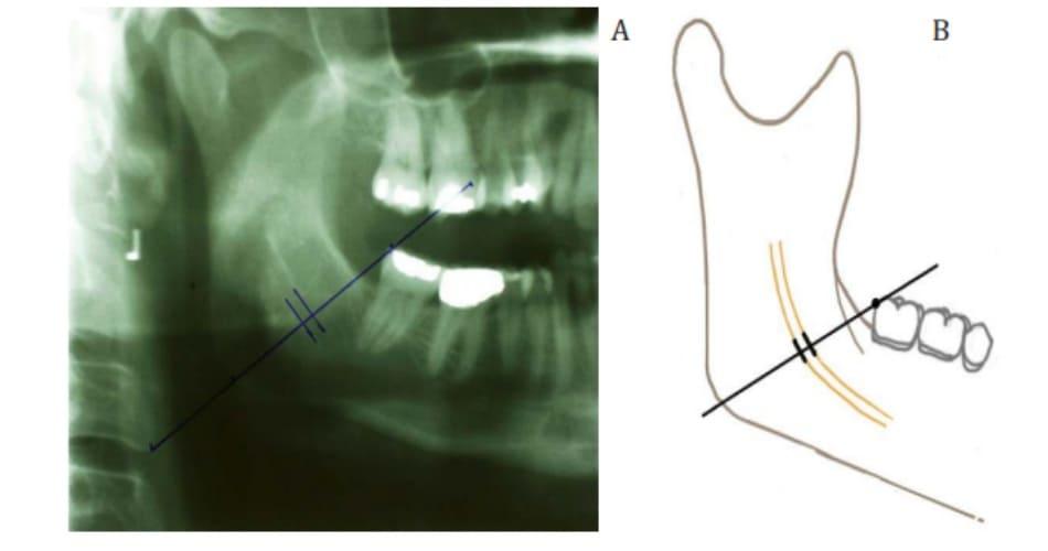 Hình 38-2 Đường nối từ góc sau răng cối trên cùng đến điểm xa nhất thuộc góc xương hàm dưới (đường góc – răng)