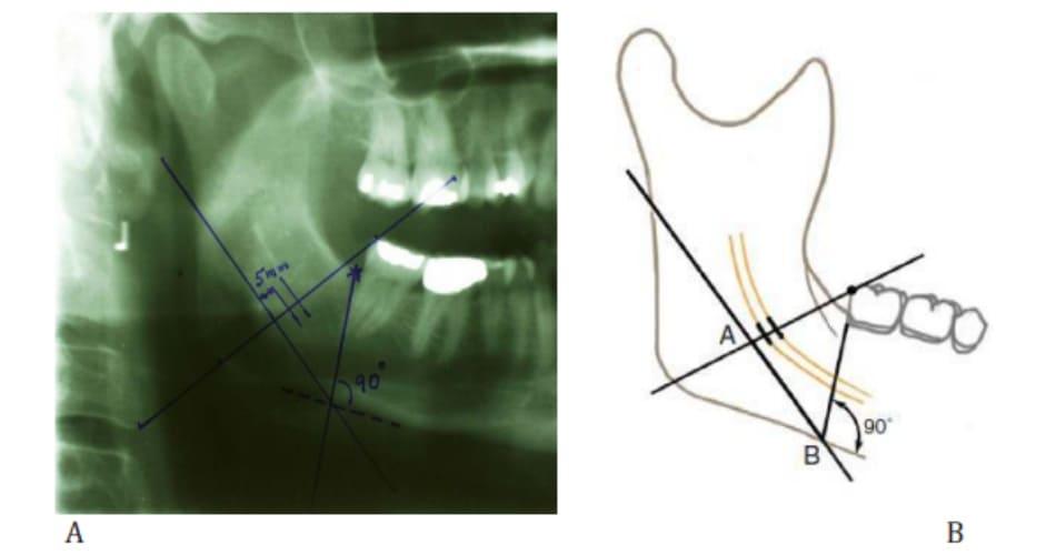 Hình 38-4 Một đường thẳng vuông góc với bờ dưới xương hàm dưới, đi qua điểm B, vẽ theo chiều dọc. Điểm C là nơi đường dọc cắt ngang qua bờ trên thân xương hàm dưới.