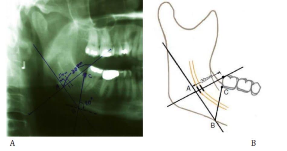 Hình 38-6 Khoảng cách giữa răng cối và điểm A được đo. Trên hình ảnh xương hàm dưới này, khoảng cách đó là 30 mm.