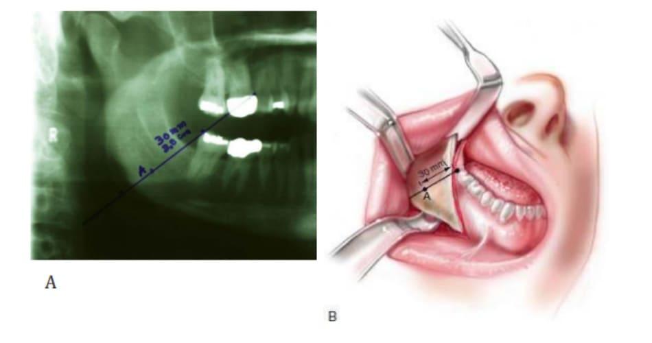 Hình 38-7 Đường nối góc – răng được vẽ từ góc sau thuộc răng cối trên đến góc xương hàm dưới. Điểm A được đánh dấu bằng cách đo khoảng cách từ răng cối trên cùng. Dựa trên sự tính toán, điểm A ở trên bề mặt xương hàm dưới có khoảng cách thực là 25mm tính từ răng cối trên cùng. Tuy nhiên, tác giả sử dụng con số 30mm để đảm bảo thêm phần an toàn.