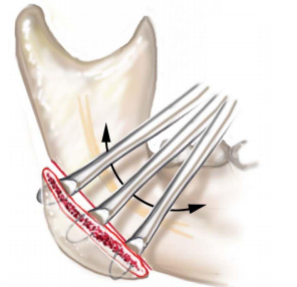 Hình 39-11 Màng xương ở cạnh giữa phần góc xương hàm được nâng lên.