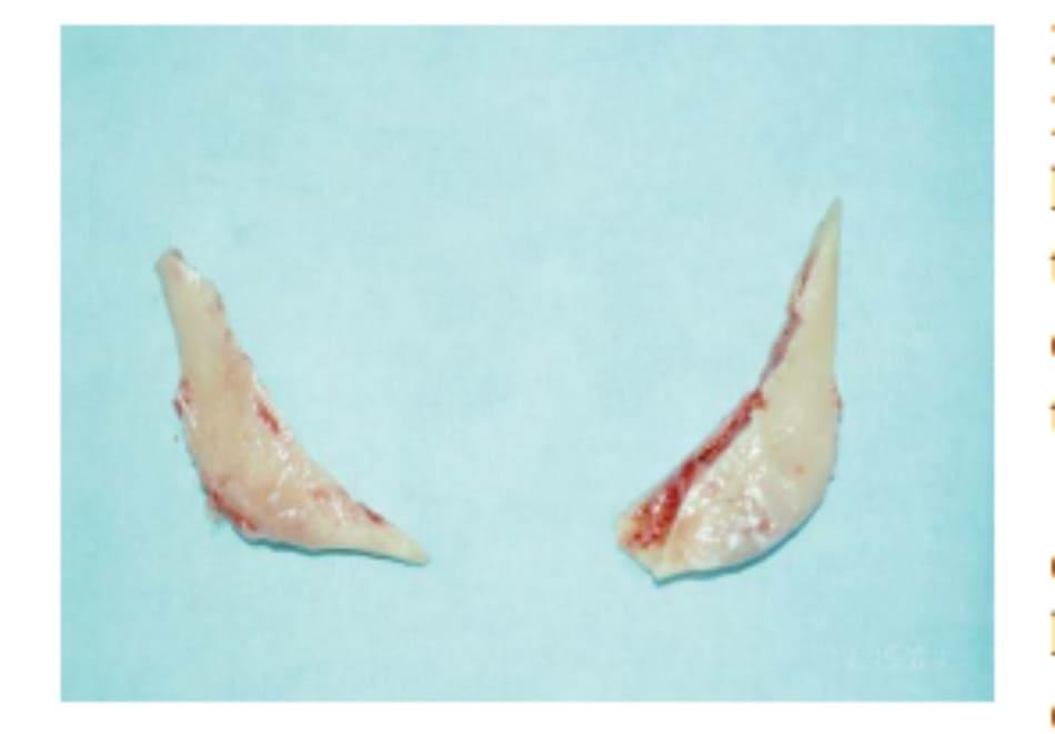 Hình 39-12 Các mảnh góc hàm được cắt đi