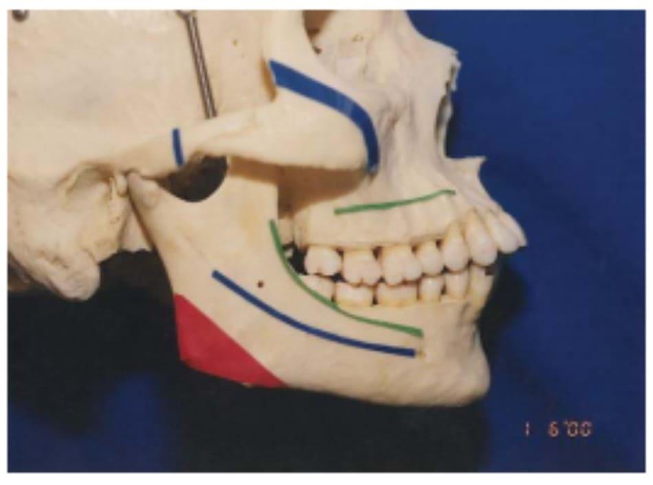 Hình 39-3 Đường xanh lá cây trên xương hàm dưới chỉ vết rạch vùng niêm mạc – nướu, đường xanh dương chỉ đường đi của đường hầm cho bó mạch thần kinh huyệt răng dưới, và đường đỏ biểu thị tam giác góc hàm cần cắt bỏ.