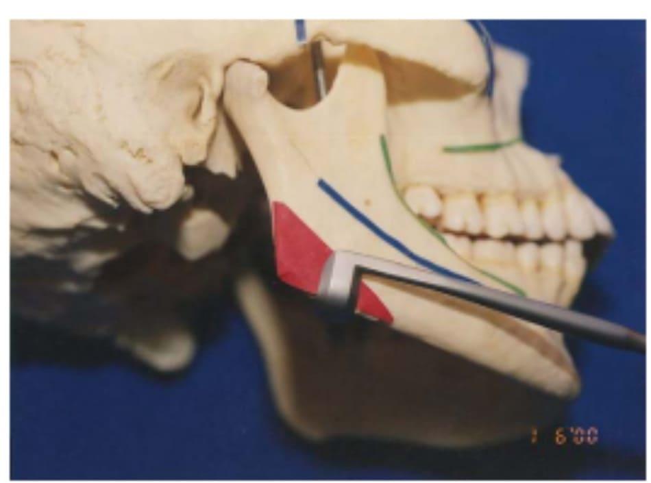 Hình 39-4 Màng xương được lột từ bờ dưới bằng dụng cụ lột Obwegeser