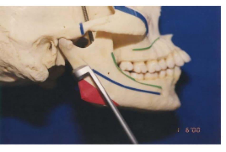 Hình 39-5 Cận cảnh bờ sau ngành xương hàm