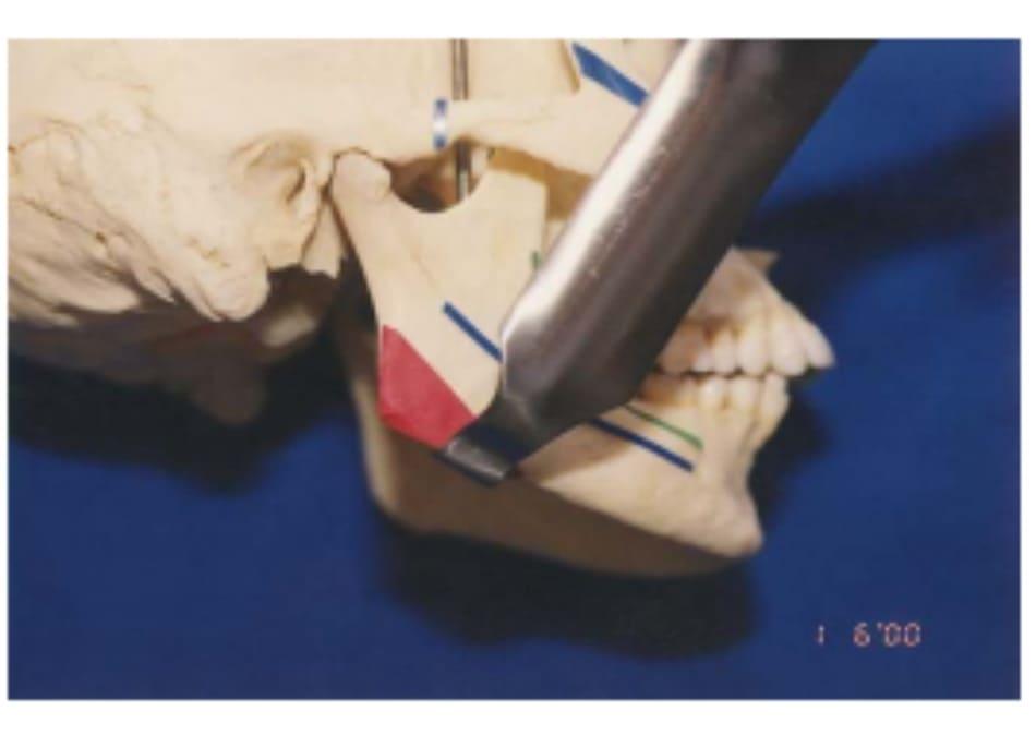 """Hình 39-7 """"Retractor"""" theo đường dọc phần xương cắt Obwegeser đặt ở bờ dưới xương hàm."""